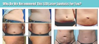 Limited fer Diode Lipo Laser LLLT Fat Cellulite Reduction