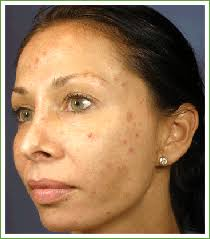 Pumpkin Enzyme Peel Before And After by Clinical Skin Care Marina U0027s Oasis Pasadena Medi Spa Medical