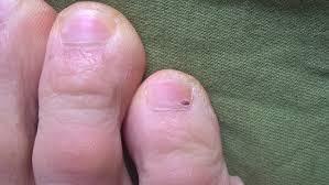 mif forums dark spot on toe s nail