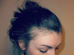 Minoxidil Shedding Phase Pictures by Fern U0026 Blush Postpartum Hair Loss What To Expect