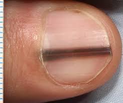 Nail Bed Melanoma by Nail Matrix Melanoma Consecutive Cases In A General Practice
