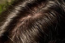 excessive hair shedding causes does an scalp cause hair loss 3 steps to treat prevent it