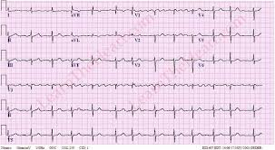 Atrial Flutter with Variable Conduction ECG 1