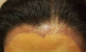 Minoxidil Shedding Phase Pictures by Hair Loss Causes Archives Page 54 Of 423 Wrassman M D Baldingblog