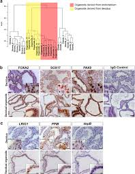 Uterine Lining Shedding After C Section by Long Term Hormone Responsive Organoid Cultures Of Human