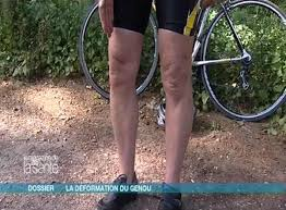 ch t genoux ligaments tendons