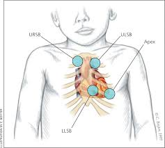 Cyanotic Nail Beds by Evaluation And Management Of Heart Murmurs In Children American
