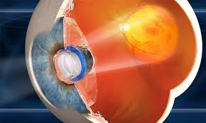 An Implantable Miniature Telescope From The Company VisionCare Focuses A Magnified View Of Intact Central Vision Onto Healthy Part Macula