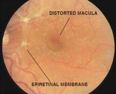 66 Best Ophthalmology Images On Pinterest