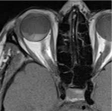 3 Axial T1W MRI Image Showing A Choroidal Melanoma Retinal Detachment And Haemorrhage References Department Of Radiology Peter MacCallum Cancer Centre