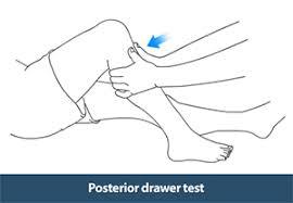 Knee Examination Harrow Knee Arthritis Treatment Uxbridge