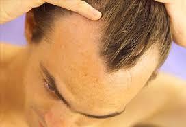Rambut Botak Depan Menumbuhkan Penumbuh