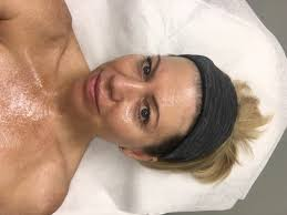 Pumpkin Enzyme Peel Before And After by Microdermabrasion Vs Microneedling Vs Dermaplaning Results