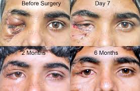 Orbital Floor Fracture Treatment by Ophthalmic Plastic Surgery Orbit And Ocular Oncology Clinical
