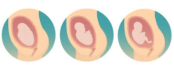 accoucher en siege accouchement du siège pregnancy info