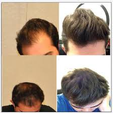the good the bad and the hair hairlosstalk forums