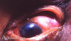 Postop Cataract Complication Massive Prolapse Of The Iris