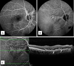 Fig 1 Fluorescein Angiography