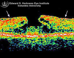 Macular Pseudohole And The Corresponding OCT Study Note Overlying Epiretinal Membrane Which Causes Wrinkling