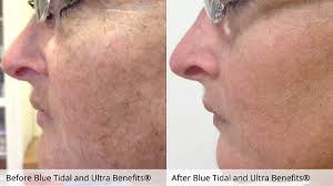 Pumpkin Enzyme Peel Before And After by Nancy Pulido Lmt Certified In Myoskeletal Alignment Cosmetology