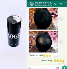 UNIX Hair Solution Menutup Rambut Gugur Jarang Botak Tengah