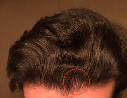 shedding after 4 years on finasteride hairlosstalk forums