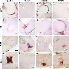 Identification Of Mechanosensitive Genes During Skeletal Development