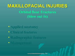 Fracture Orbital Floor Treatment by Classification U0026 Management Of Zygomatic Complex Fractures Including U2026