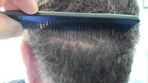 Rogaine Second Shedding Phase by Neograft Before And After 4 Months Hair Transplant Pinterest