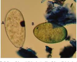 Identification Of The Rumen Fluke Calicophoron Daubneyi In GB