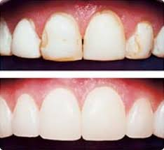 Dental Bonding Services Methuen
