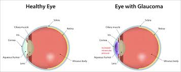 Cyanotic Nail Beds by Eye Health What Is Glaucoma Health Life Media