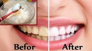 How to whiten teeth with baking soda How to whiten teeth