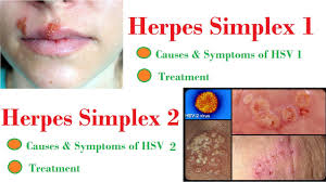 Viral Shedding Herpes Simplex by Herpes Simplex And Shingles