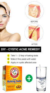 Clogged Drain Home Remedy Baking Soda by How To Get Rid Of Cystic Acne 25 Natural Ways You Should Try