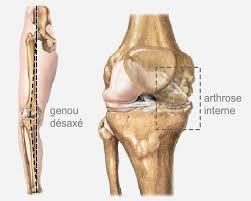 l ostéotomie tibiale de valgisation chirurgie orthpedique