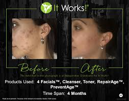 It Works Wrap Before And After