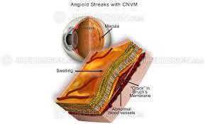 Angioid Streaks Bruchs Membrane Co0109