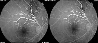 Pitfalls In The Diagnosis Of Choroidal Tumors 3 Case Reports Masses Figure 7