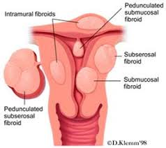 Shedding Of The Uterine Lining Is Called by Uterine Fibroid Embolization Fibroids Background Information