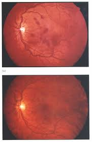 Valsalva Retinopathy Associated With Blowing Balloons
