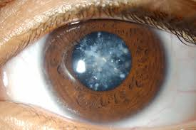 Christmas Tree Cataract Surgery by Images Of Christmas Tree Cataract Halloween Ideas