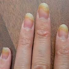 best 25 fingernail fungus treatment ideas on pinterest fungus