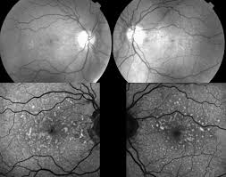 Red Free And Autofluoresence Images Photographs Showing Angioid Streaks Intraretinal