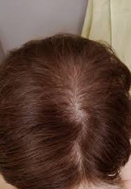 Minoxidil Shedding Phase Pictures by Alopecia Update My Experience With Treatments Including