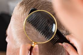 Rogaine Second Shedding Phase by Healthy Hair