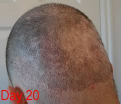 Minoxidil Shedding Phase Pictures by Hair Loss Forum Hair Loss In Fue Donor Area