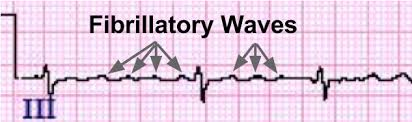 Atrial Fibrillation ECG Review Criteria and Examples