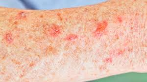Pityriasis Rosea Christmas Tree by Causes Of Scaly Skin U2014and How To Get Rid Of It Health