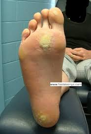 NYC Podiatry Center of Excellence